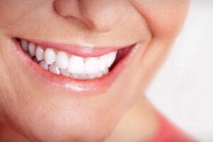 Sbiancamento-denti-bitti
